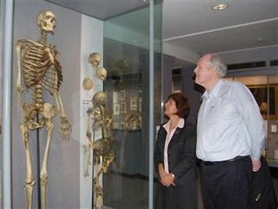 18世紀の伝説的な「アイルランドの巨人」、骨格標本のDNAから巨人症の原因遺伝子変異を特定