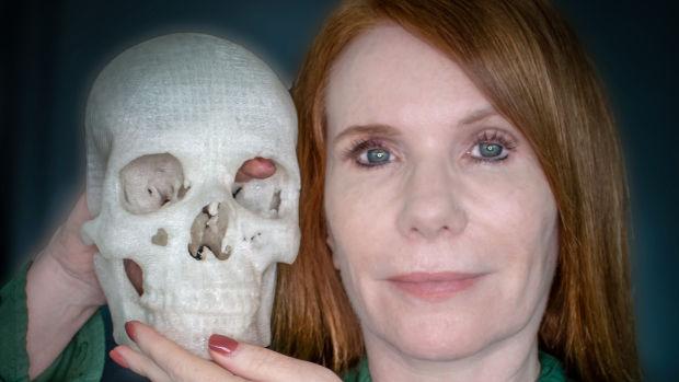 3Dプリンターで妻を救って本人が気付かない間に医療を革新していた男の話