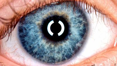 「カメラで撮影した目に白い光が写っている」ことでガンを発見して早期治療できた事例