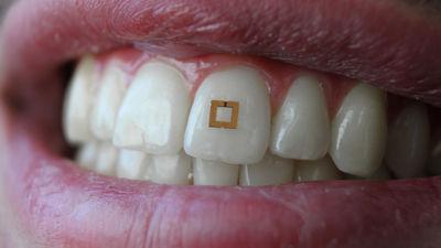 歯に貼り付けて食べたものを感知する超極小センサーが開発される