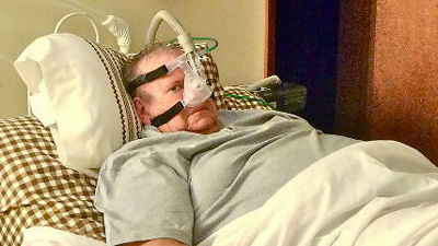 睡眠時無呼吸症候群、医療機器のハッキングで「生きながらえている」