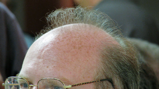 """Photo of Possibility of """"because baldness makes new coronavirus infection severe"""""""